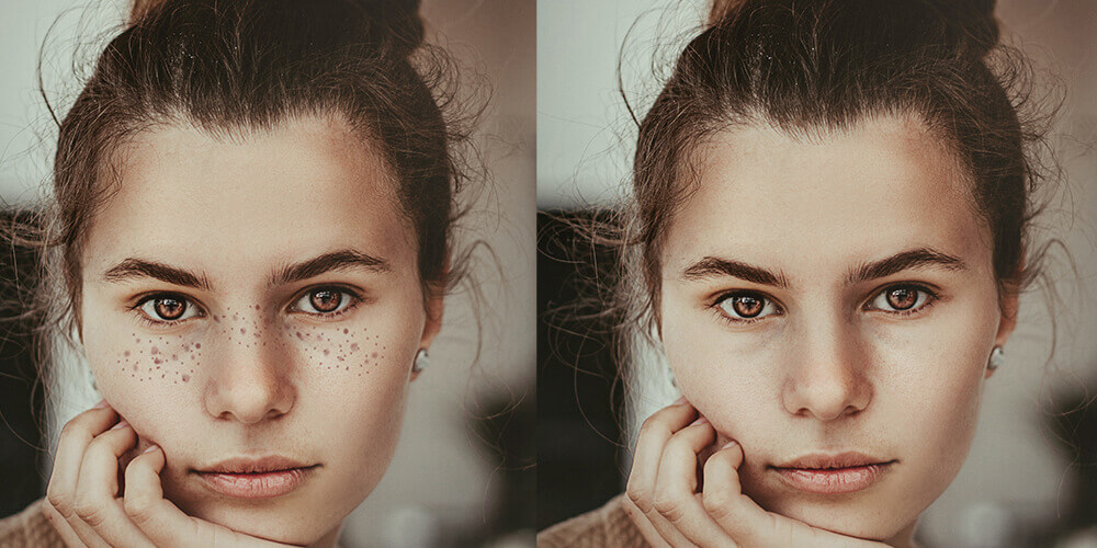 Before/After Image of smooth skin